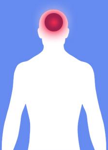 hodepine-kiropraktor-behandling